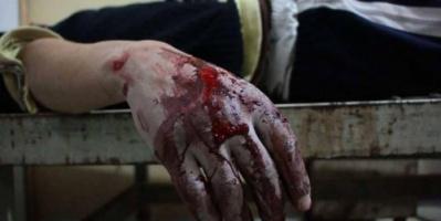 البيت الأبيض: يد روسيا ملوثة بدماء المدنيين في غوطة دمشق