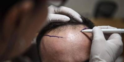#وفاة رجل بعد خضوعه لعملية زرع شعر في عيادة #خاصة في مومباي